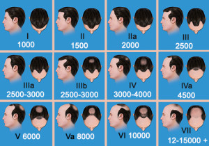 Exoderm Medical Centers Artificial Hair implant scales