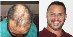 Exoderm Medical Hair implant