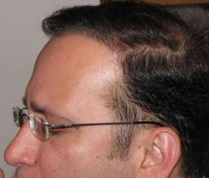 Exoderm Hair implant